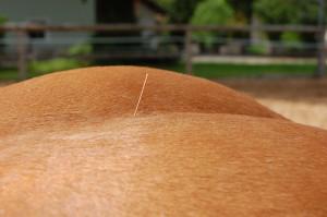 Auch bei Lahmheiten, Steifigkeit oder Hahnentritt ist eine Akupunktur hilfreich.