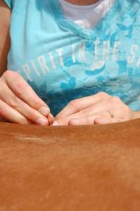 Pferde Akupunktur durch die Pferde Tierärztin Dr. Andrea Wüstenhagen